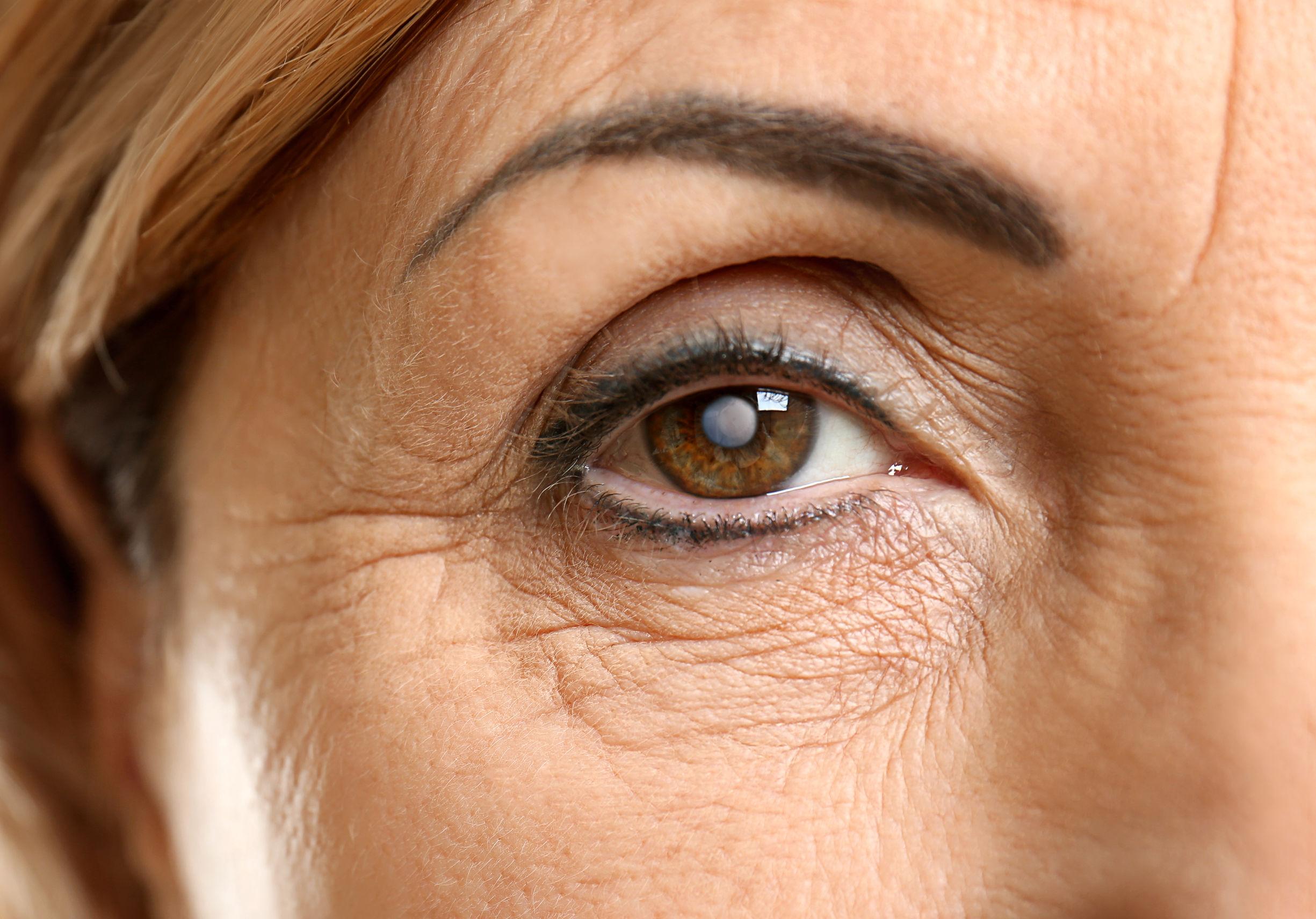 online szemteszt asztigmatizmus vegye szemüveg javítja a látástechnika könyvet